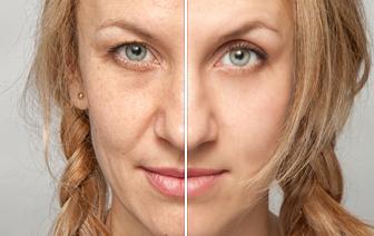 Skin Care & Anti-Aging: Melanie