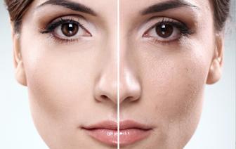 Skin Care & Anti-Aging: Sara